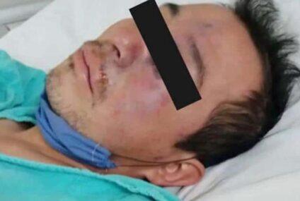 Muere Gregorio, primer caso sospechoso de hongo negro en el Edomex